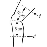 Knee Measurement