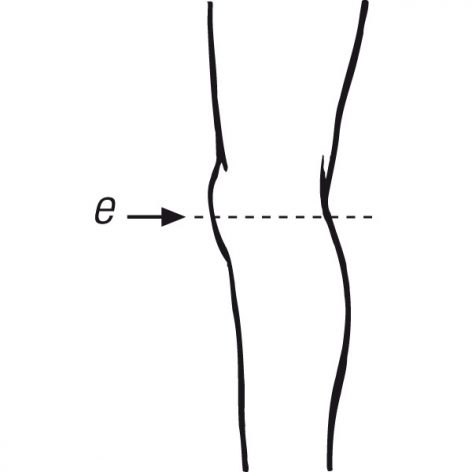 Knee- 1 point Measurement