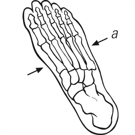 Metatarsal- Foot Measurement