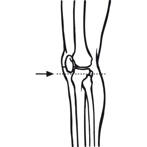 Patella Measurement